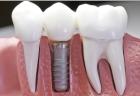 Denta Implant
