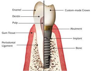 Boston Dental Implant